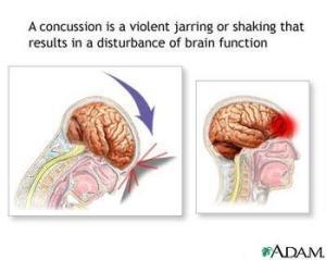 How Concussions Happen